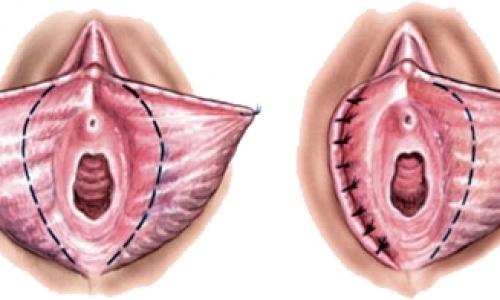Adana Labioplasti Ameliyatı